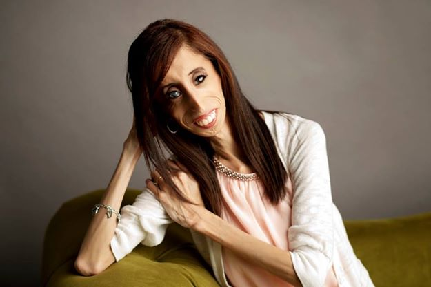 What Lizzie Velasquez Teaches Us About Making A Difference
